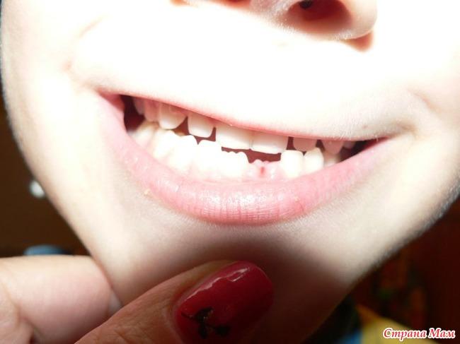 Сонник выпал зуб на месте него новый