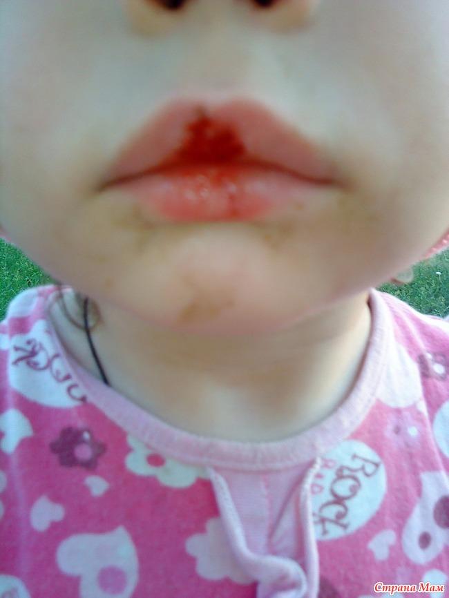 Ребёнок ковыряет губы