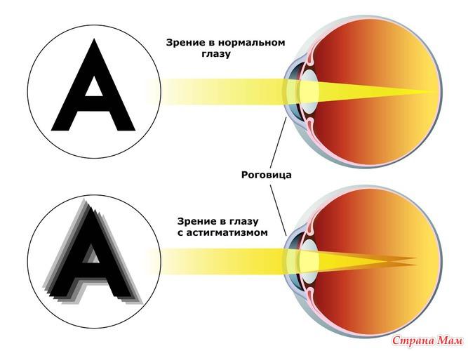 Коррекция зрения в бийске