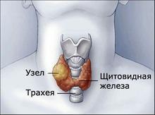 Как привести в порядок щитовидку?