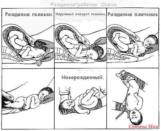 Беременность опустилась головка