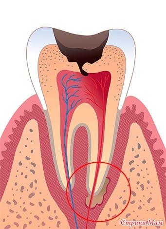 Воспаление зуба. Вопрос про лазерное лечение. - Ох уж эти зубки... - Страна Мам