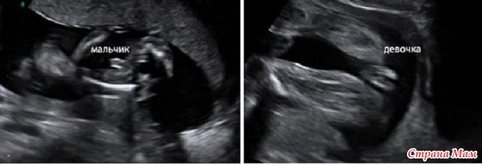 Фото узи на 16 неделе беременности девочки