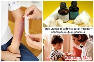 Обработка ран и царапин у детей: как и чем?