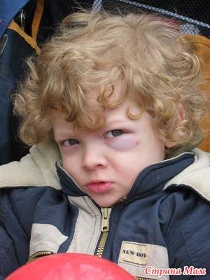 Синяки под глазами у детей.