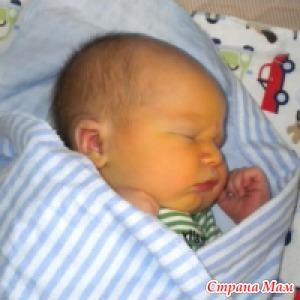 Желтухи у детей - физиологическая