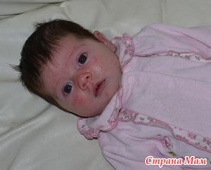Аллергия малыша на ГВ