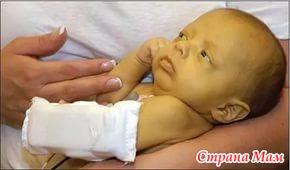 Желтуха при гемолитической болезни новорожденных, чем она опасна?