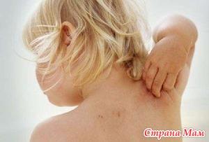 Укус клеща - боррелиоз (болезнь Лайма), лечение и профилактика