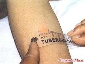 Диагностика туберкулеза. Проба Манту