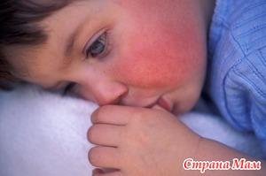 О детской скарлатине - причины и протекание.