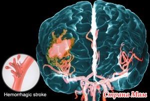 Ишемические атаки и геморрагический инсульт.
