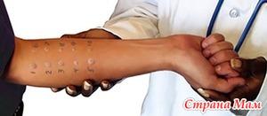 Виды кожных проявлений аллергии. Тестирование на аллергию.