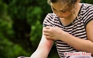 Аллергия на укусы комаров.