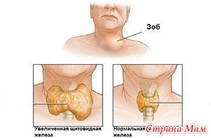 Патологии щитовидной железы: гипотиреоз и тиреотоксикоз