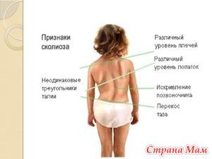 Как лечить сколиоз у детей?