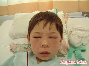 Анафилактический шок у детей: чем он опасен?