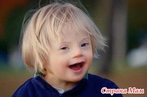 Как возникает синдром Дауна?