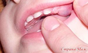 Что влияет на сроки прорезывания зубов у малышей?