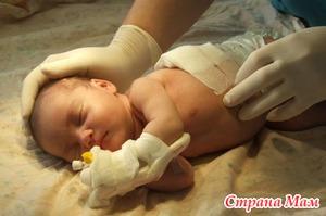 Диафрагмальные грыжи у детей: что это и как лечат?